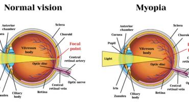 สายตาสั้นคืออะไร??