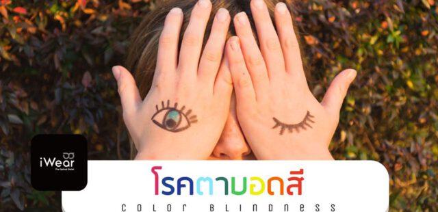 โรคตาบอดสี ( Color Blindness )